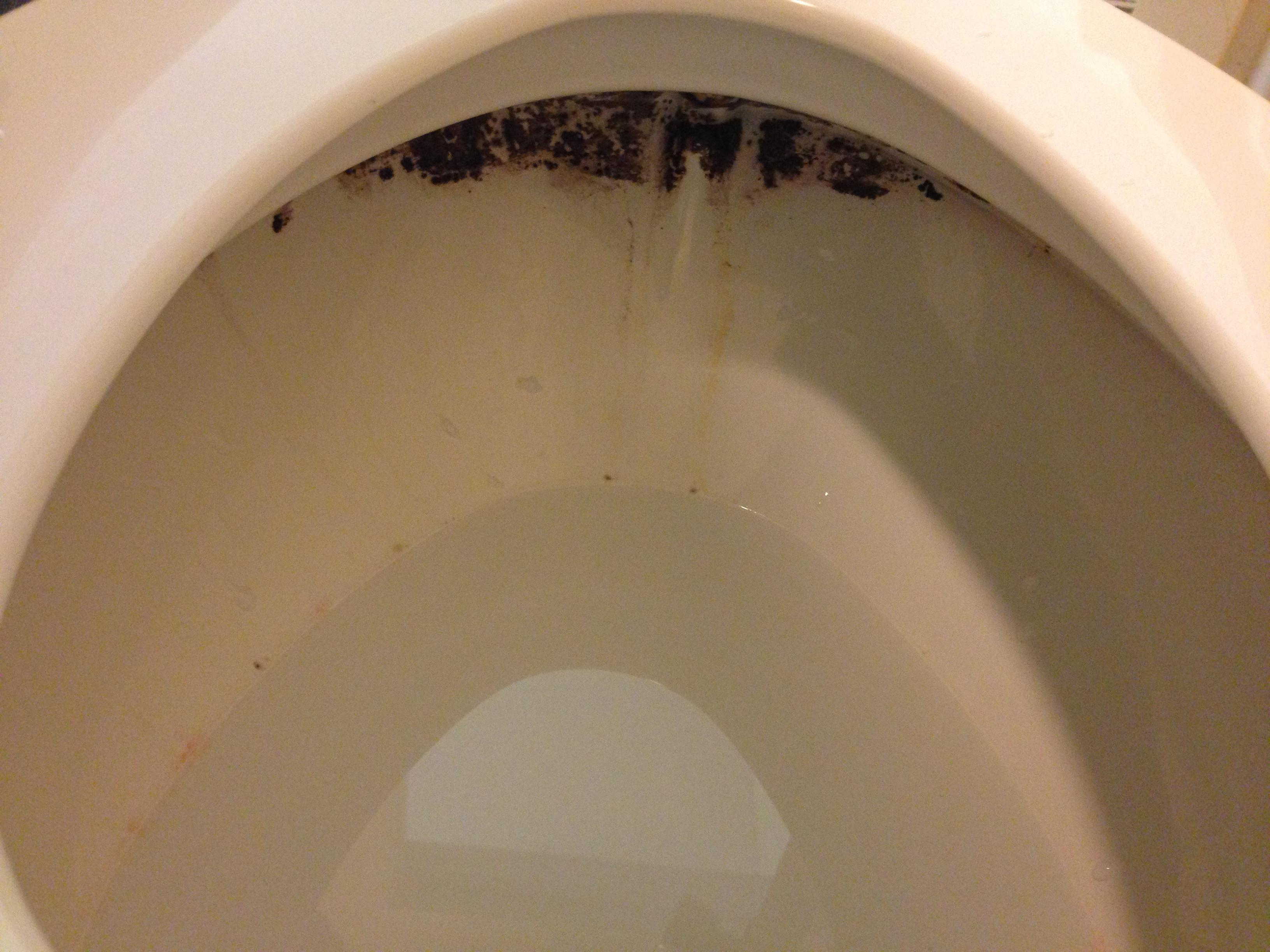 Toilet so dirty!!! Not sure what the cleaners or inspectors do !!