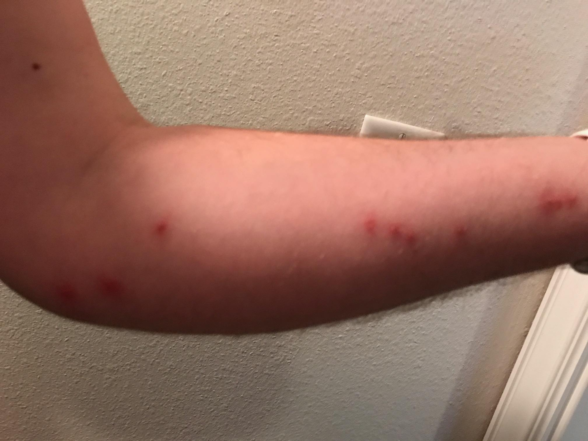 Bed Bugs a week later