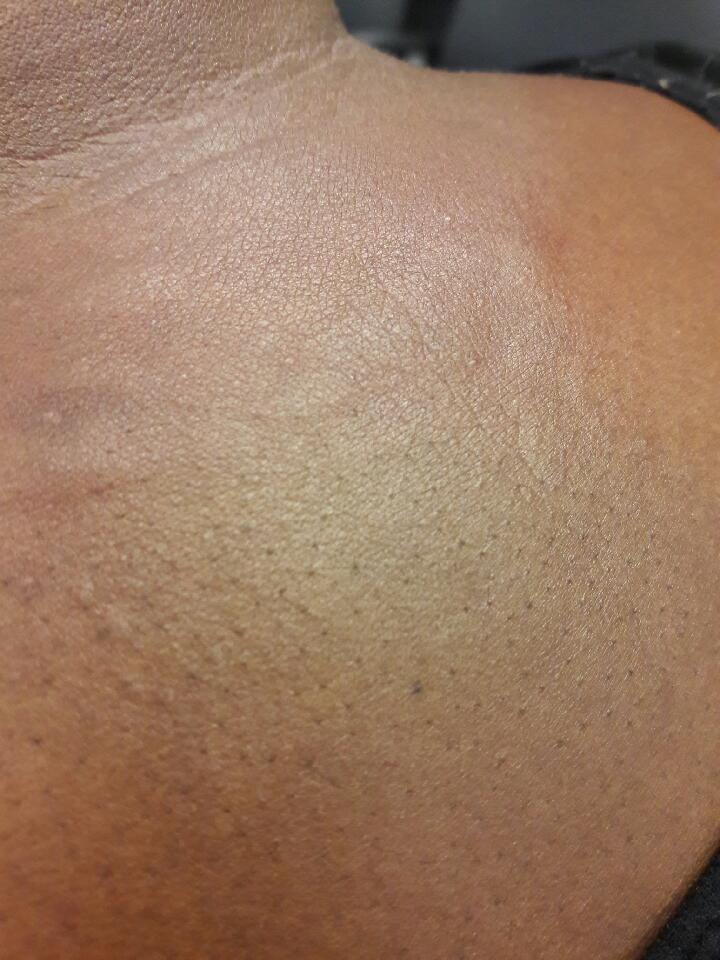 Bed Bug  Bitten back